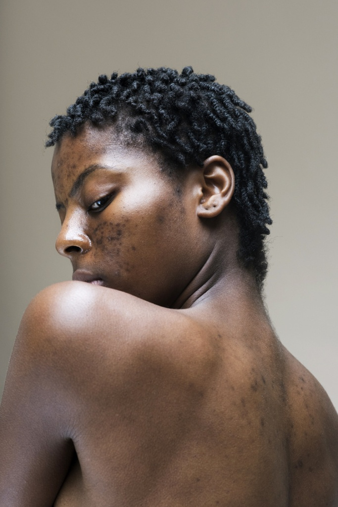 An image from Sophie's series, featuring a model confidently displaying her acne.