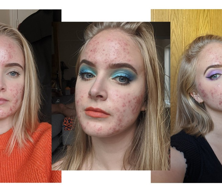 Blogger Kyrie Green shows her acne